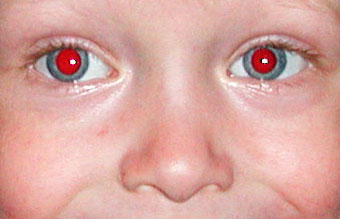 Photoshop Eye Editing-red eye